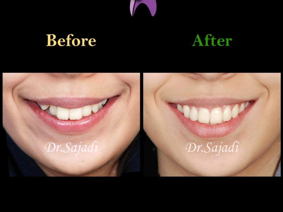 WhatsApp Image 2019 11 02 at 12.09.52 960x720 - ارتودنسی برای بیماری با بيرون زدگي دندان نيش