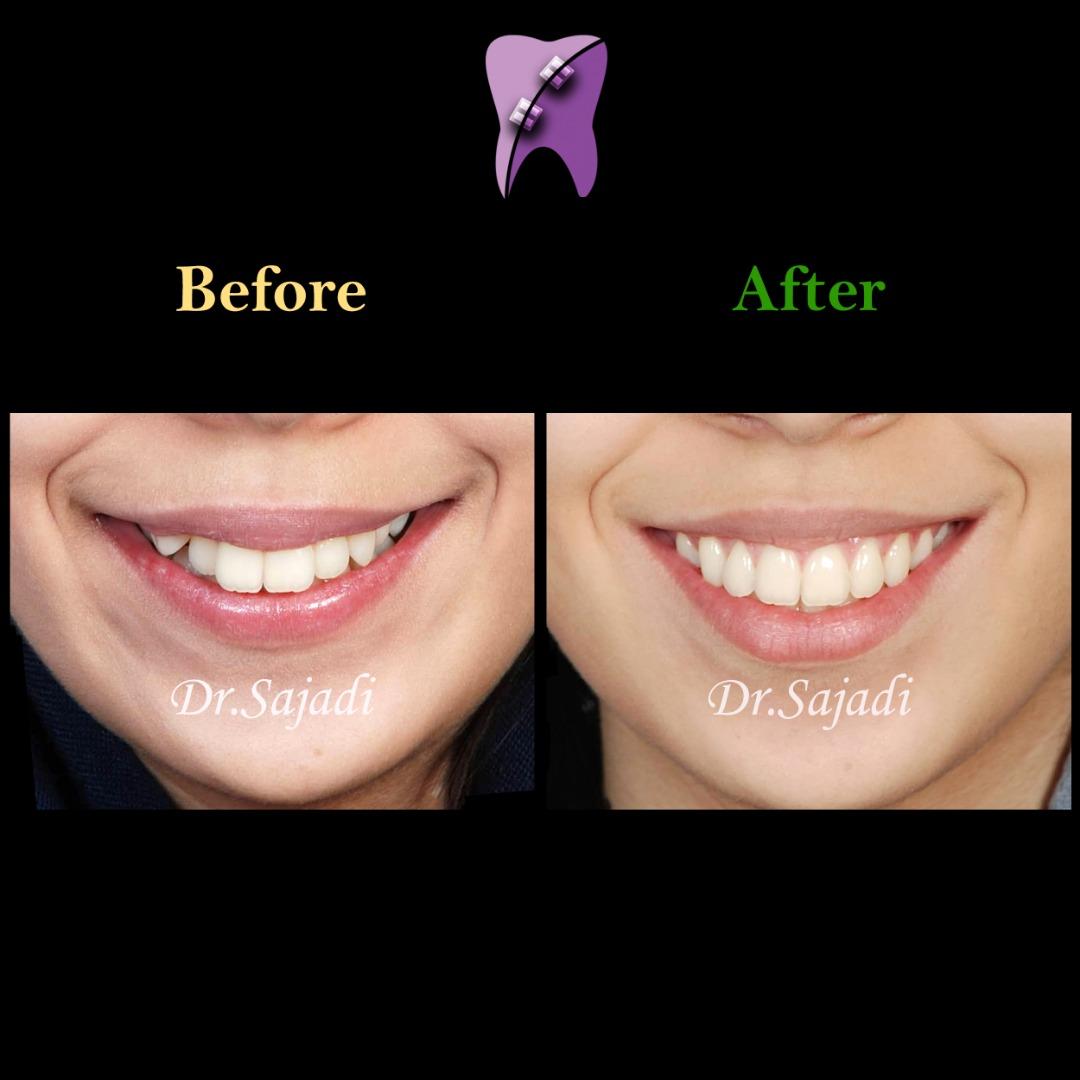 WhatsApp Image 2019 11 02 at 12.09.52 - ارتودنسی برای بیماری با بيرون زدگي دندان نيش
