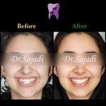 photo ۲۰۱۹ ۱۱ ۳۰ ۰۶ ۲۹ ۱۹ 150x150 - درمان ارتودنسي ثابت دو فك بدون كشيدن دندان