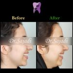photo ۲۰۱۹ ۱۱ ۳۰ ۰۶ ۲۹ ۲۲ 150x150 - درمان ارتودنسي ثابت دو فك بدون كشيدن دندان