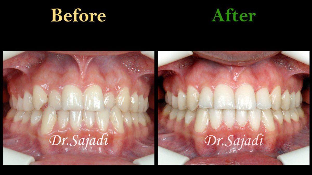 photo ۲۰۱۹ ۱۱ ۳۰ ۰۶ ۲۹ ۲۶ 1200x675 - درمان ارتودنسي ثابت دو فك بدون كشيدن دندان