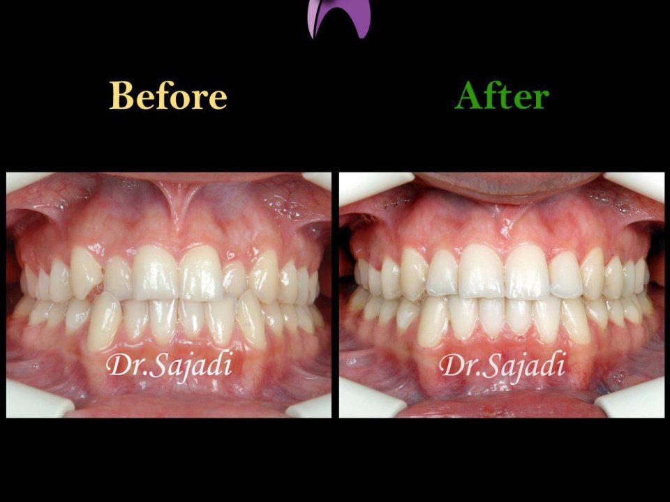 photo ۲۰۱۹ ۱۱ ۳۰ ۰۶ ۲۹ ۲۶ 960x720 - درمان ارتودنسي ثابت دو فك بدون كشيدن دندان
