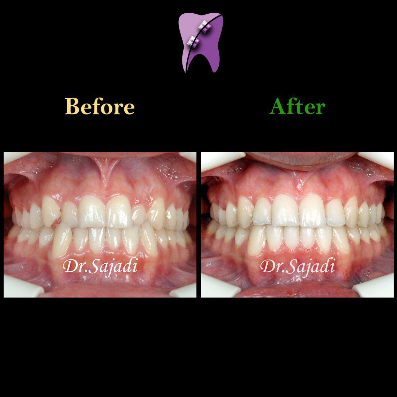 photo ۲۰۱۹ ۱۱ ۳۰ ۰۶ ۲۹ ۲۶ - درمان ارتودنسي ثابت دو فك بدون كشيدن دندان
