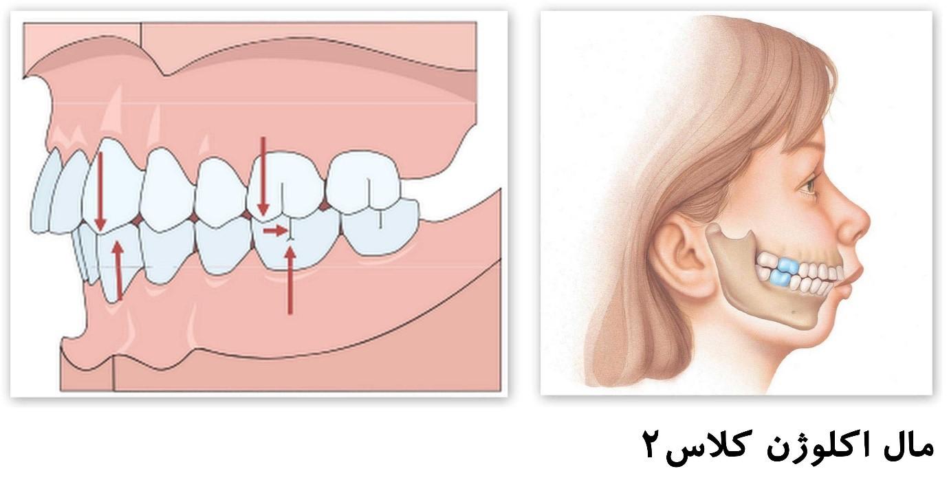 اختلالات بایت یا مال اکلوژن