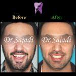 photo 2019 12 05 10 21 57 150x150 - درمان ارتودنسي برای انحراف میدلاین دندان هاي فك بالا