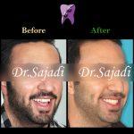 photo 2019 12 05 10 21 59 150x150 - درمان ارتودنسي برای انحراف میدلاین دندان هاي فك بالا