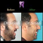 photo 2019 12 05 10 22 02 150x150 - درمان ارتودنسي برای انحراف میدلاین دندان هاي فك بالا