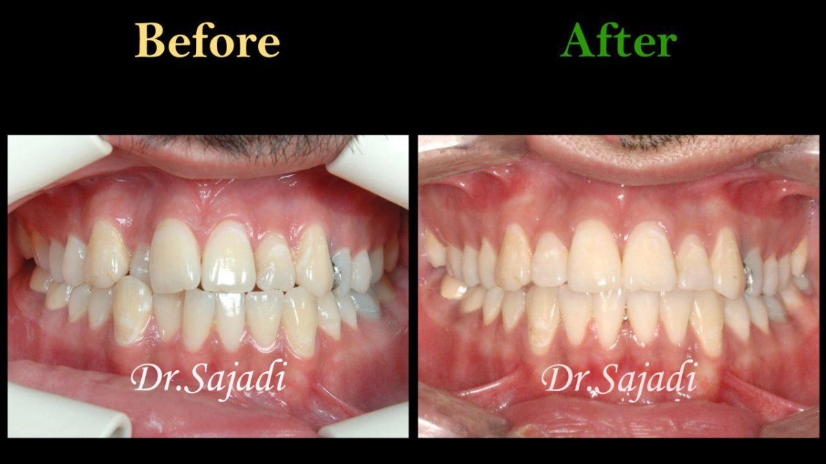 photo 2019 12 05 10 22 06 1200x675 - درمان ارتودنسي برای انحراف میدلاین دندان هاي فك بالا