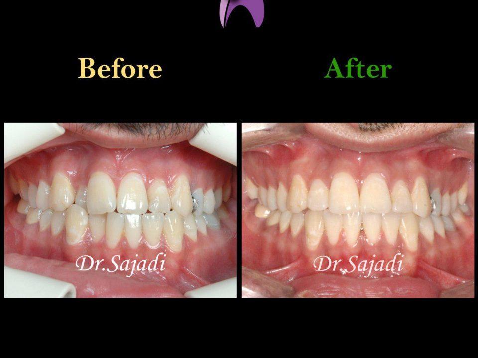 photo 2019 12 05 10 22 06 960x720 - درمان ارتودنسي برای انحراف میدلاین دندان هاي فك بالا