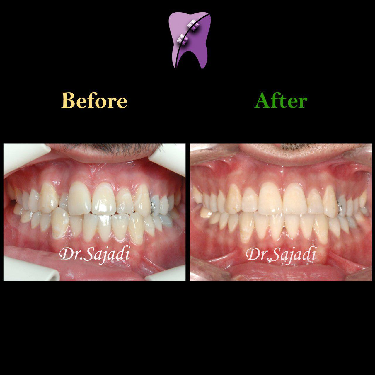 photo 2019 12 05 10 22 06 - درمان ارتودنسي برای انحراف میدلاین دندان هاي فك بالا