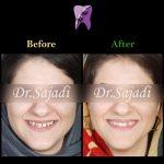 photo 2019 12 08 12 07 20 150x150 - درمان ارتودنسي برای انحراف خط وسط دندان