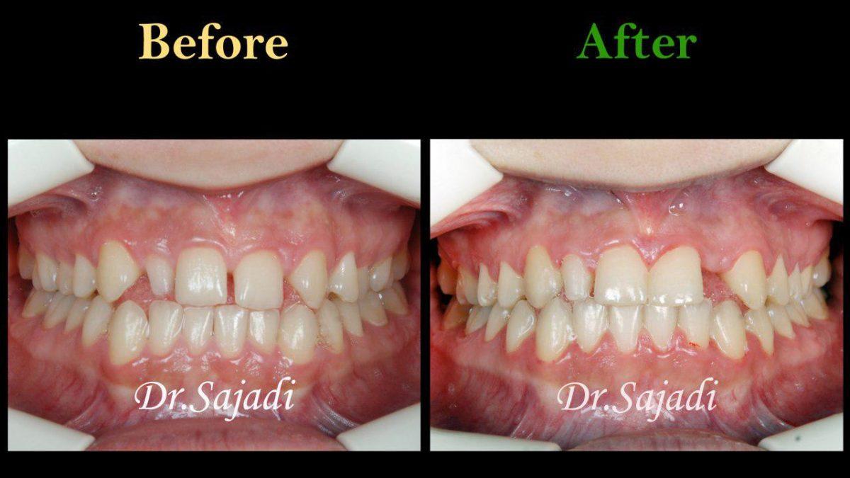 photo 2019 12 08 12 07 29 1200x675 - درمان ارتودنسي برای انحراف خط وسط دندان