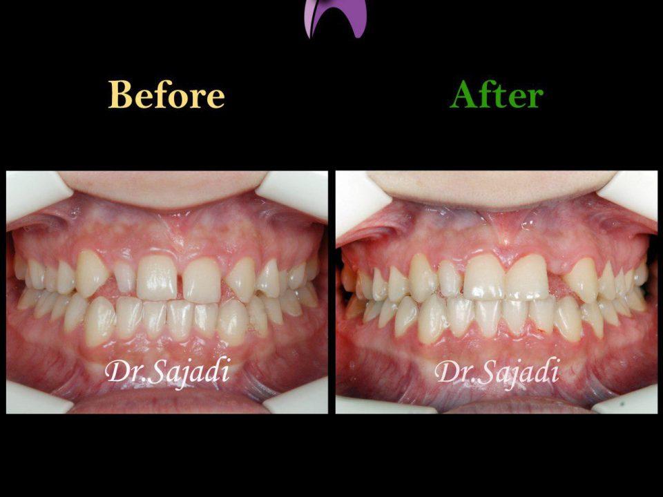 photo 2019 12 08 12 07 29 960x720 - درمان ارتودنسي برای انحراف خط وسط دندان