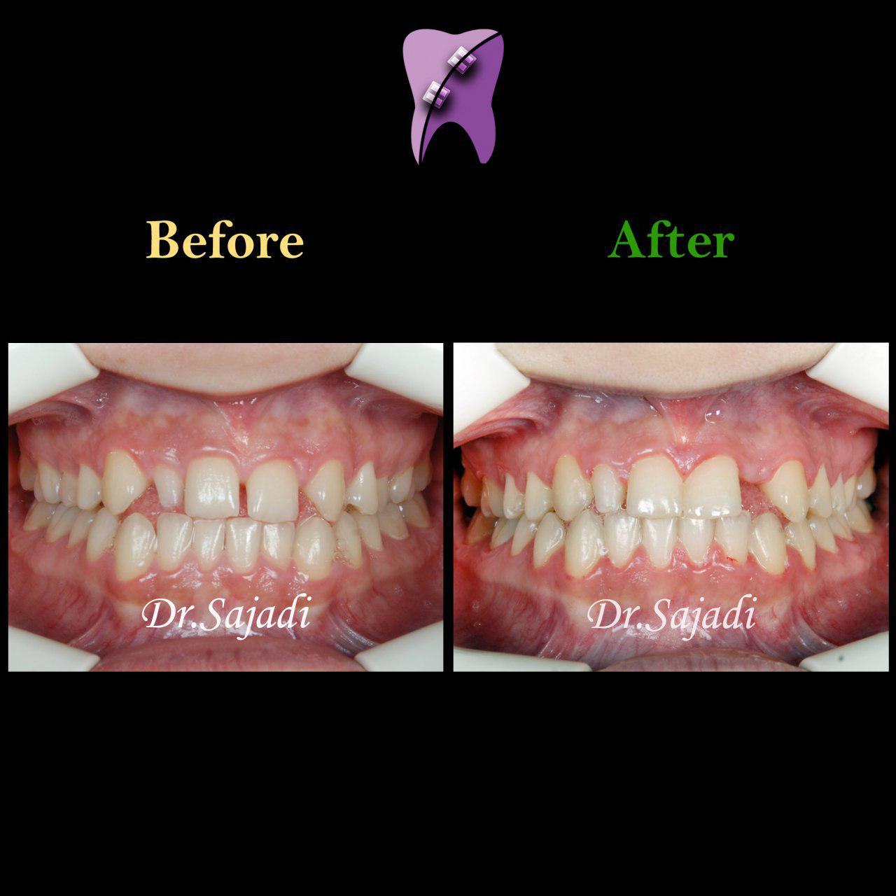 photo 2019 12 08 12 07 29 - درمان ارتودنسي برای انحراف خط وسط دندان
