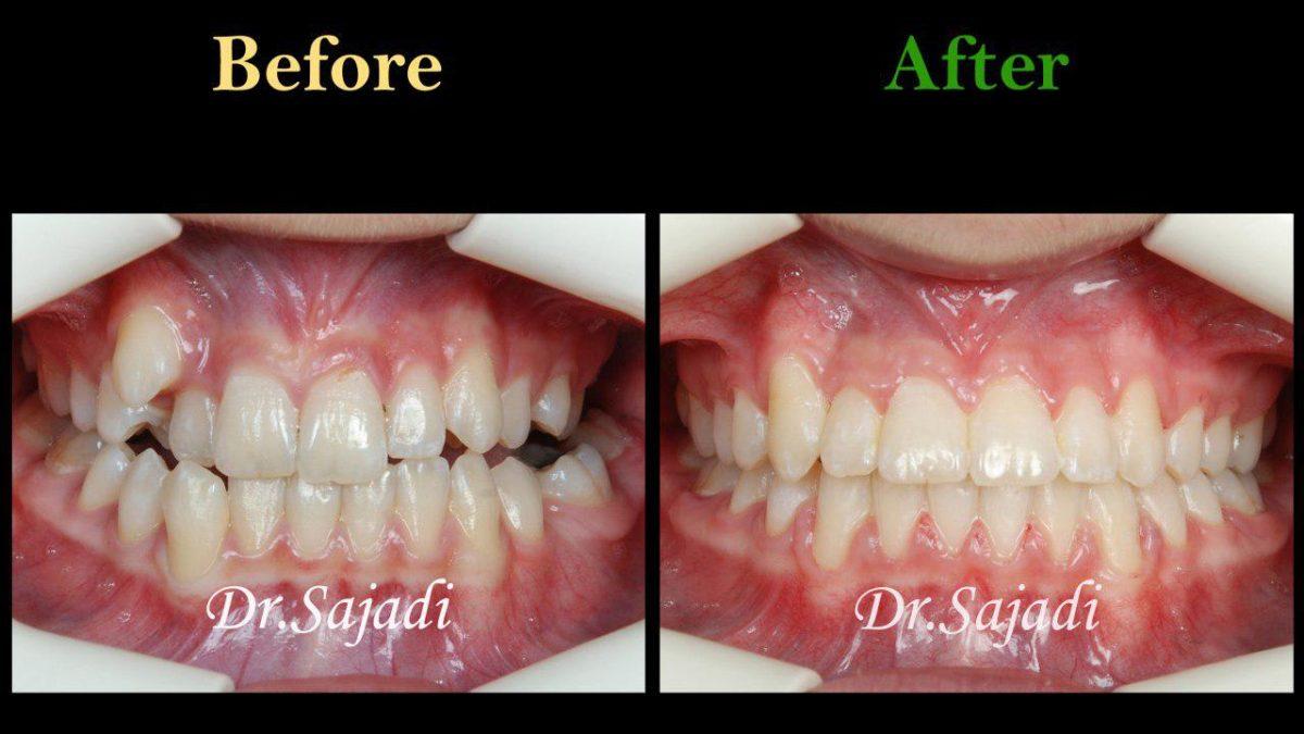 photo 2019 12 15 13 43 34 1200x675 - درمان ارتودنسي برای كمبود فضا براي رويش دندان نيش