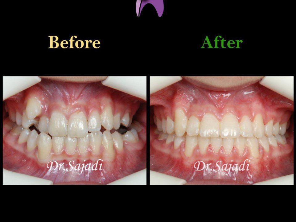 photo 2019 12 15 13 43 34 960x720 - درمان ارتودنسي برای كمبود فضا براي رويش دندان نيش