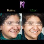 photo 2019 12 23 10 55 51 150x150 - درمان ارتودنسي بيمار با نارضايتي از بي نظمي دندان