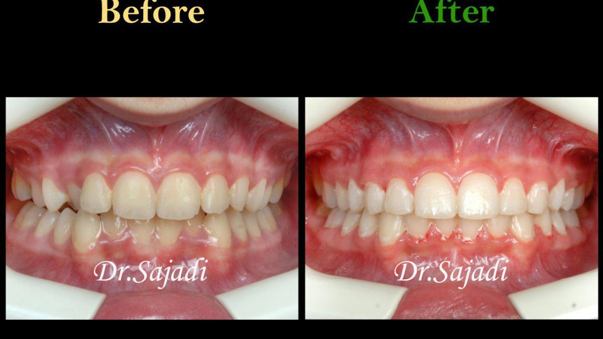 photo 2019 12 23 10 55 56 1200x675 - درمان ارتودنسي بيمار با نارضايتي از بي نظمي دندان