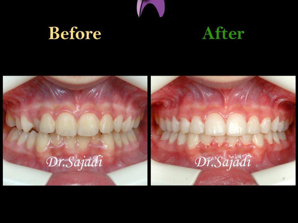 photo 2019 12 23 10 55 56 960x720 - درمان ارتودنسي بيمار با نارضايتي از بي نظمي دندان
