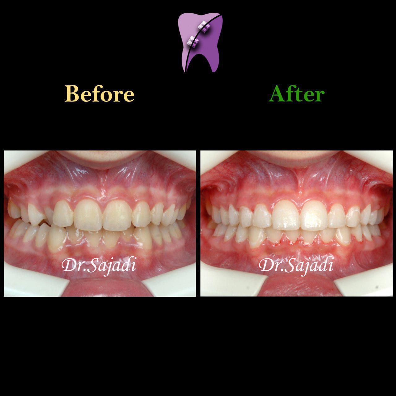 photo 2019 12 23 10 55 56 - درمان ارتودنسي بيمار با نارضايتي از بي نظمي دندان