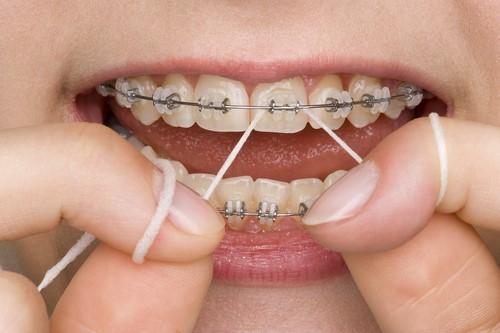 1 1 - اهمیت استفاده از نخ دندان در ارتودنسی