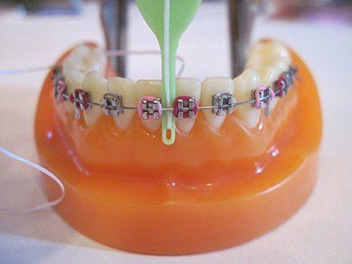 نخ دندان در ارتودنسی