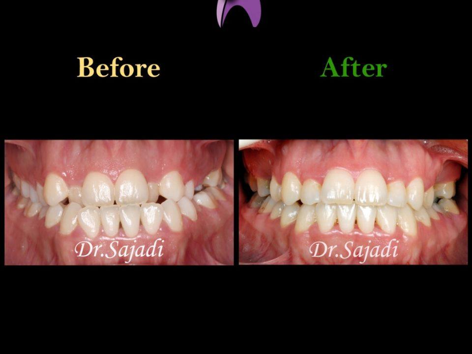 WhatsApp Image 2020 01 04 at 13.05.20 960x720 - درمان ارتودنسي بيمار با نازيبايي لبخند و شكايت از جلو بودن چانه