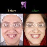 WhatsApp Image 2020 01 04 at 13.05.24 150x150 - درمان ارتودنسي بيمار با نازيبايي لبخند و شكايت از جلو بودن چانه