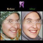 WhatsApp Image 2020 01 26 at 12.11.59 1 150x150 - درمان ارتودنسي بيمار با بالا بودن دندان نیش