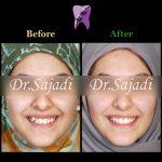 WhatsApp Image 2020 01 26 at 12.11.59 150x150 - درمان ارتودنسي بيمار با بالا بودن دندان نیش