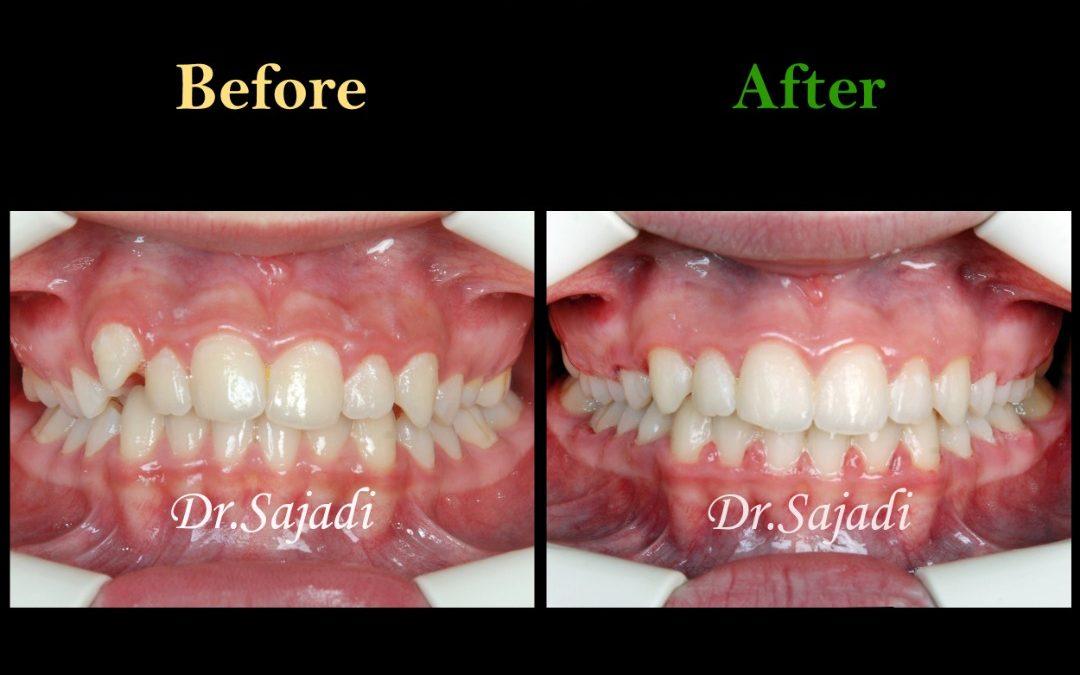 WhatsApp Image 2020 01 26 at 12.12.00 1 1080x675 - درمان ارتودنسي بيمار با بالا بودن دندان نیش