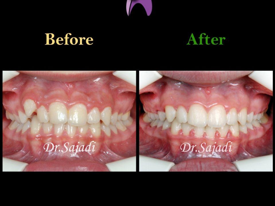 WhatsApp Image 2020 01 26 at 12.12.00 1 960x720 - درمان ارتودنسي بيمار با بالا بودن دندان نیش
