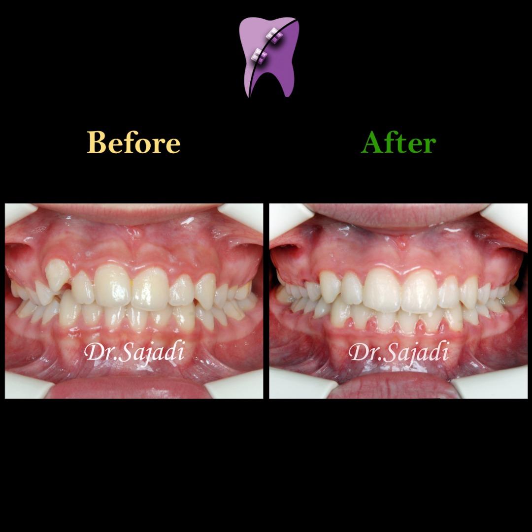 WhatsApp Image 2020 01 26 at 12.12.00 1 - درمان ارتودنسي بيمار با بالا بودن دندان نیش