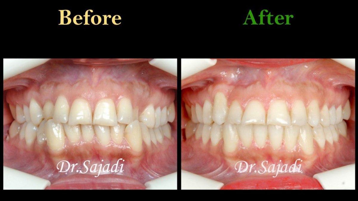 photo 2020 01 13 10 44 02 1200x675 - درمان ارتودنسي بيمار با رفع بي نظمي دندان