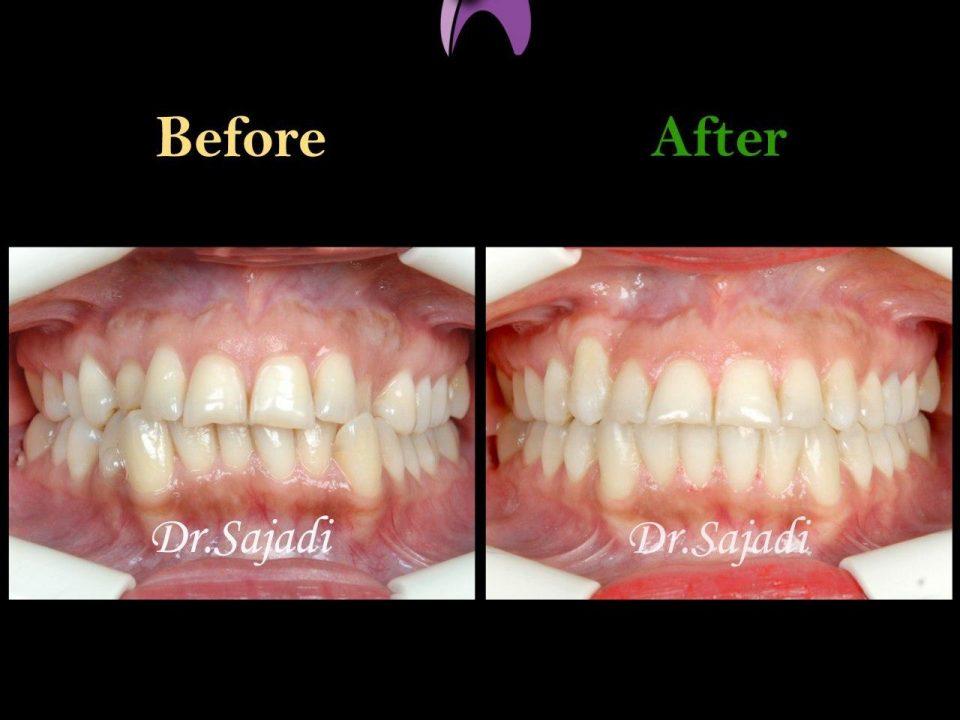 photo 2020 01 13 10 44 02 960x720 - درمان ارتودنسي بيمار با رفع بي نظمي دندان