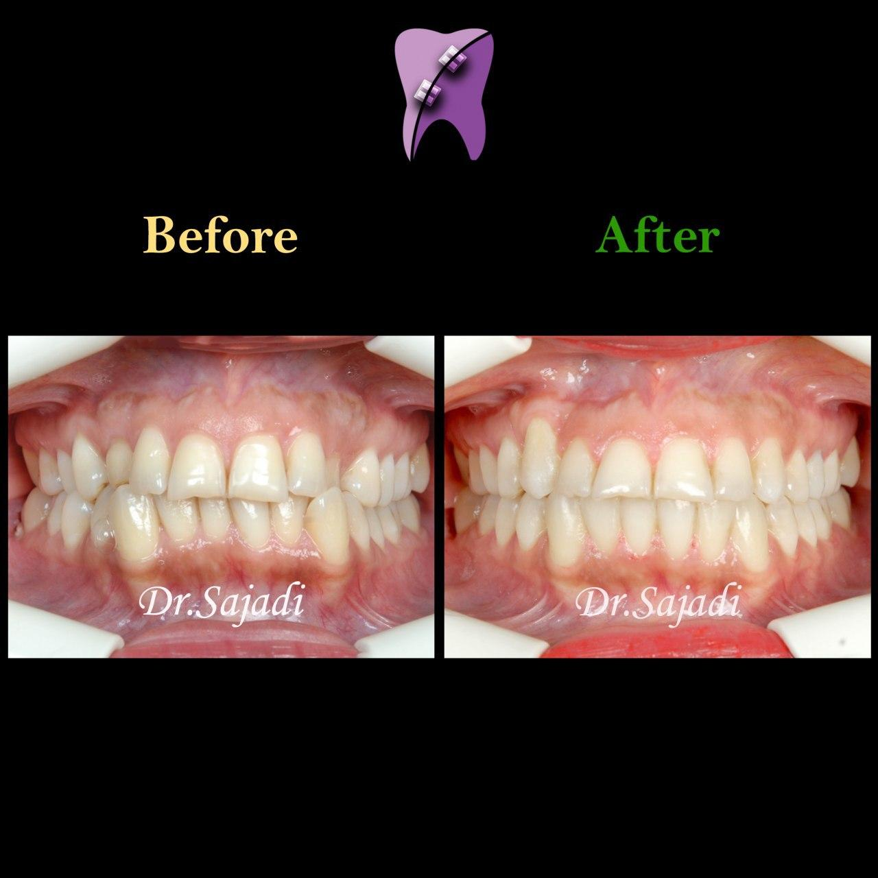 photo 2020 01 13 10 44 02 - درمان ارتودنسي بيمار با رفع بي نظمي دندان