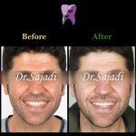 photo 2020 01 18 11 31 16 150x150 - درمان ارتودنسي بيمار با داشتن يك دندان اضافه در فك بالا