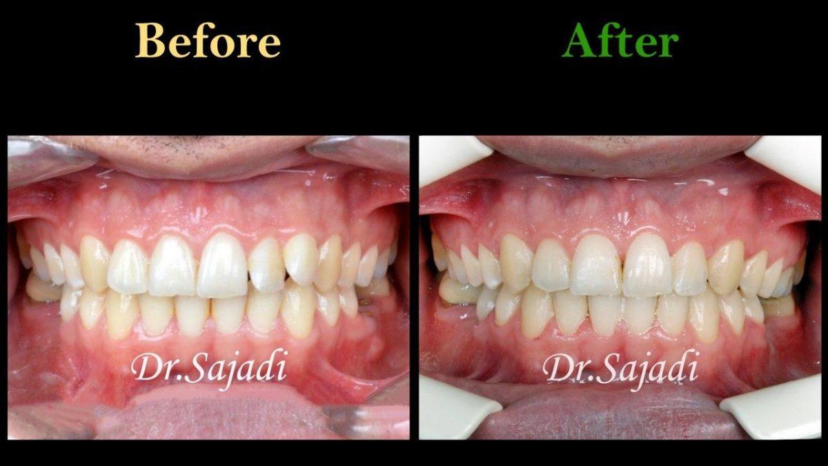 photo 2020 01 18 11 31 17 1200x675 - درمان ارتودنسي بيمار با داشتن يك دندان اضافه در فك بالا