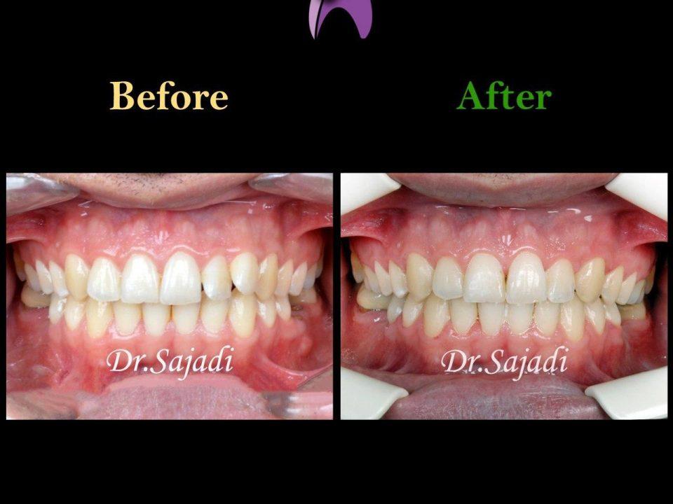 photo 2020 01 18 11 31 17 960x720 - درمان ارتودنسي بيمار با داشتن يك دندان اضافه در فك بالا
