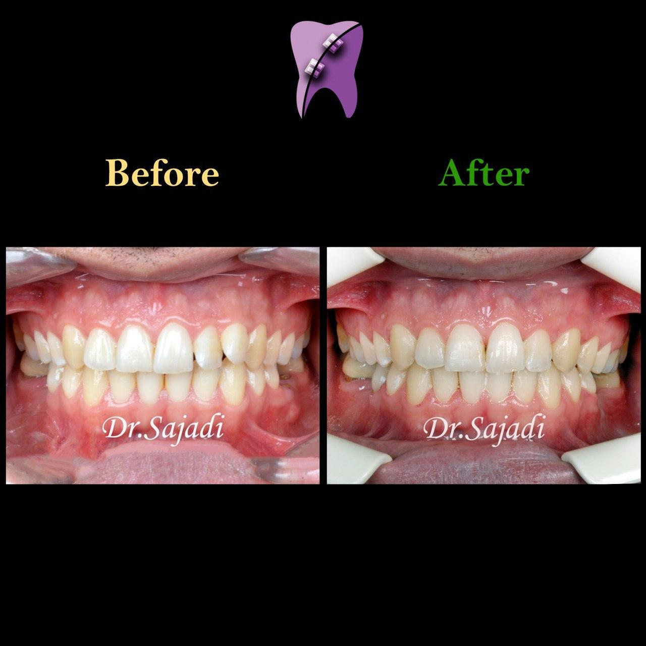 photo 2020 01 18 11 31 17 - درمان ارتودنسي بيمار با داشتن يك دندان اضافه در فك بالا