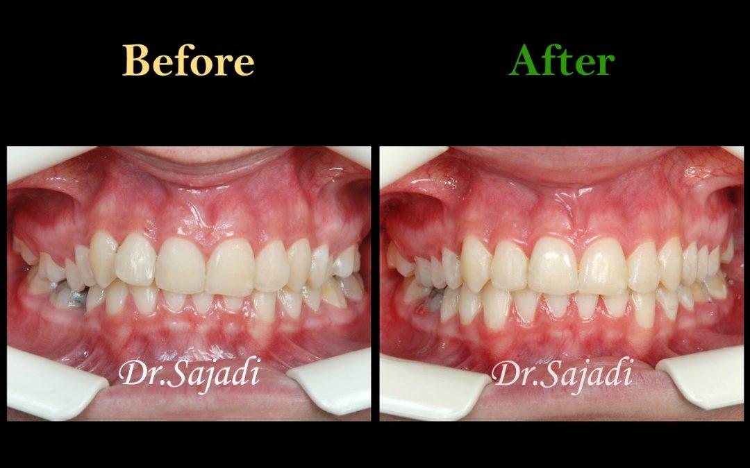 WhatsApp Image 2020 02 02 at 13.56.33 1080x675 - درمان ارتودنسي بيمار با نارضایتی از کجی دندان فک پایین