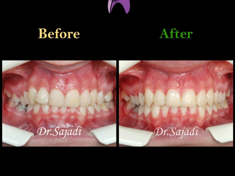 WhatsApp Image 2020 02 02 at 13.56.33 960x720 - درمان ارتودنسي بيمار با نارضایتی از کجی دندان فک پایین