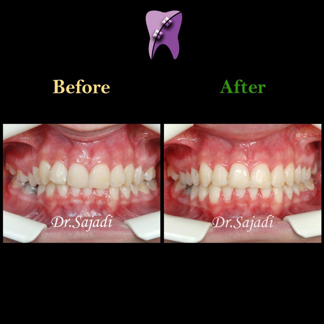 WhatsApp Image 2020 02 02 at 13.56.33 - درمان ارتودنسي بيمار با نارضایتی از کجی دندان فک پایین