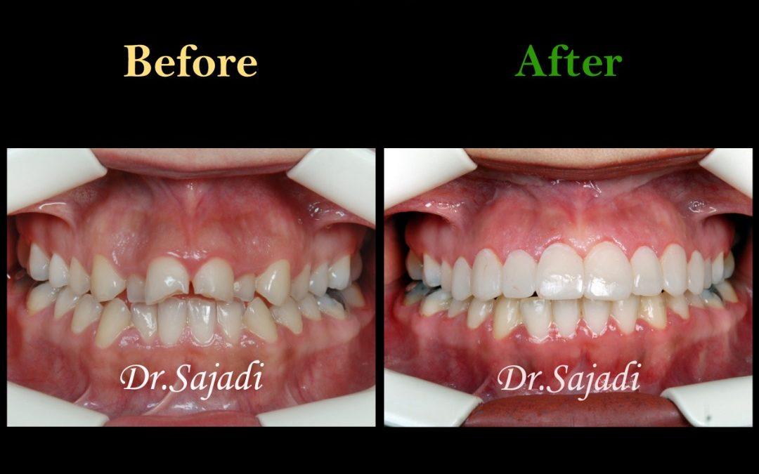 WhatsApp Image 2020 02 08 at 11.43.04 1 1080x675 - درمان ارتودنسي بيمار با نارضایتی از دندان های جلوی