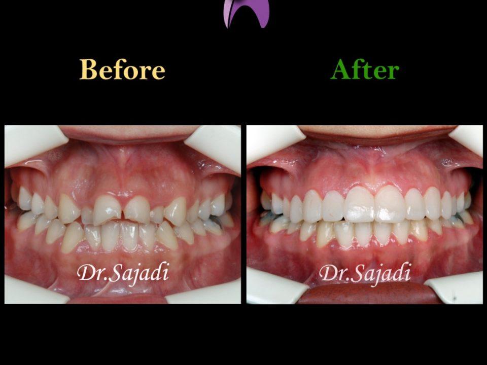 WhatsApp Image 2020 02 08 at 11.43.04 1 960x720 - درمان ارتودنسي بيمار با نارضایتی از دندان های جلوی