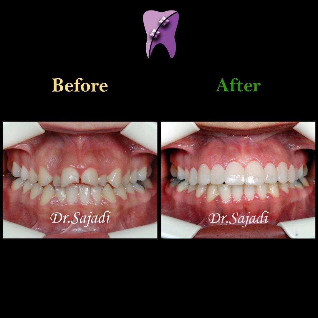 WhatsApp Image 2020 02 08 at 11.43.04 1 - درمان ارتودنسي بيمار با نارضایتی از دندان های جلوی