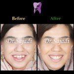 b939835f 3ca2 443d 9fcf 0b720d0aa5df 150x150 - درمان ارتودنسي بيمار برای رفع تنگی فک بالا