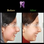 135c6bf2 79f4 4cb5 84bf dfacd68bd078 150x150 - درمان ارتودنسي بی نظمی شدید بدون کشیدن دندان