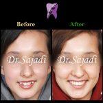 17681dbd b25e 4743 8022 d22f66b08428 150x150 - درمان ارتودنسي بی نظمی شدید بدون کشیدن دندان