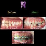 1bd591f4 fbe0 4099 8ae5 bc76f42f7496 150x150 - درمان ارتودنسي نارضایتی از موقعیت دندان ها و فک پایین